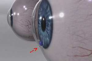 fiu-engineering-and-computing-glaucoma-eye-device300x200